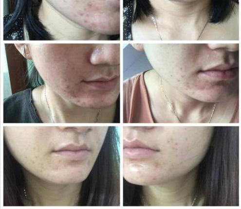 脸过敏发红发痒怎么办?换季敏感肌肤如何护理?